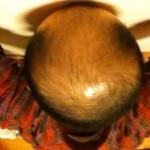 2013年11月19日髪の毛の具合