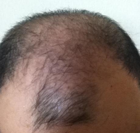 現状の頭皮の状態2014年11月12日