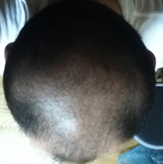 11月25日の頭頂部