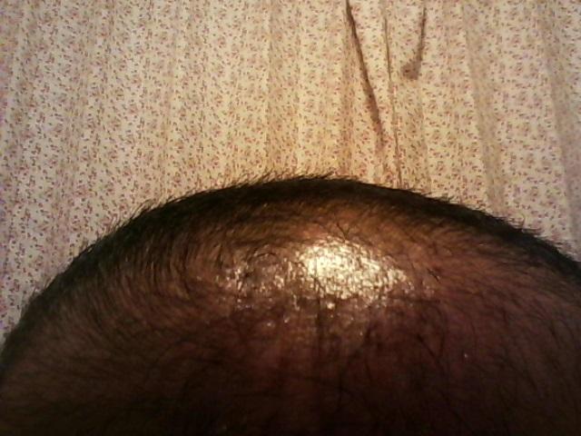 薄毛ハゲ50代頭皮
