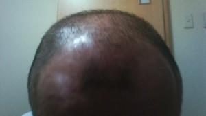 現状の髪の毛