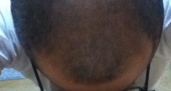 チャップアップの結果はM字の産毛