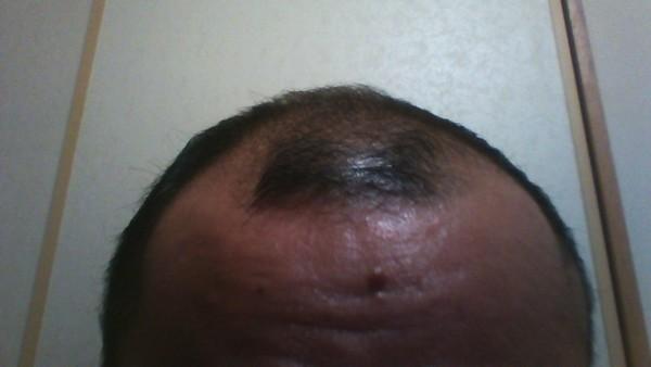 フィンジア使用開始22日目の頭皮環境