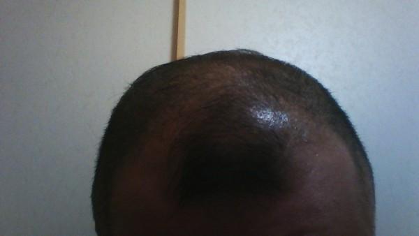 11月28日フィンジアでの頭皮環境