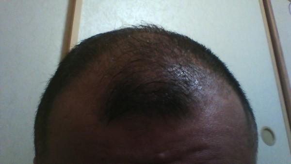 2015年11月30日の頭皮環境