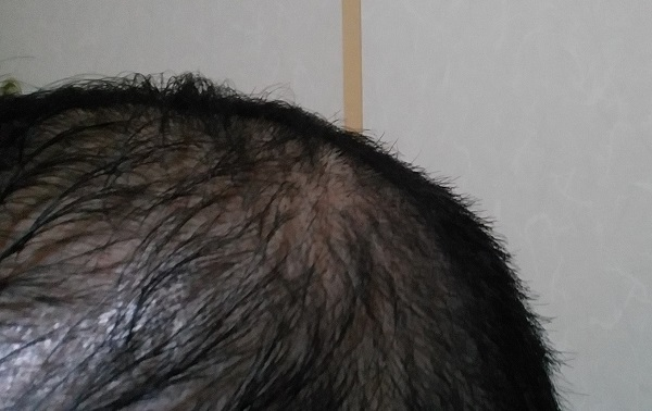 hair33