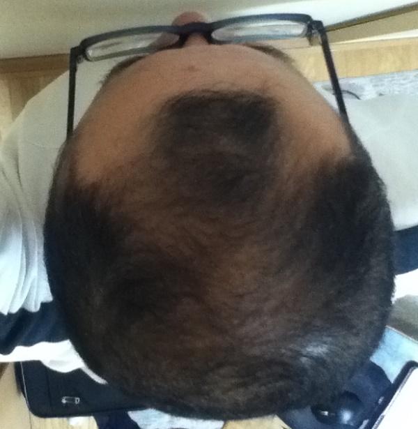 2016年5月4日の頭頂部