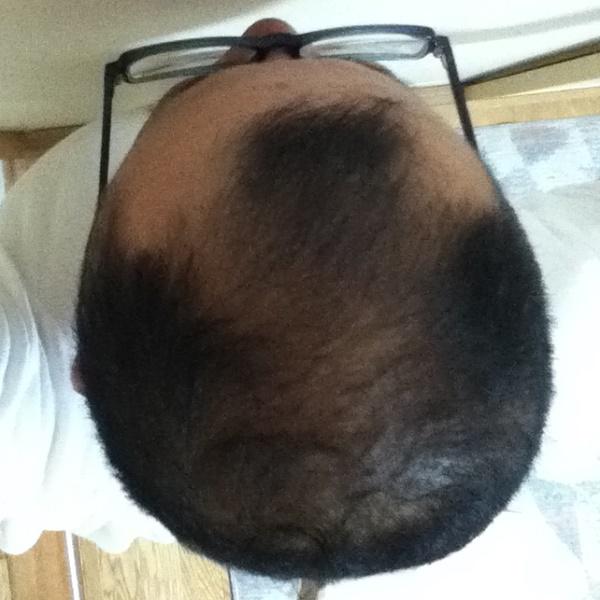 2016年5月30日の頭頂部