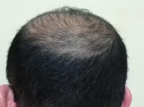 2015年3月16日後頭部