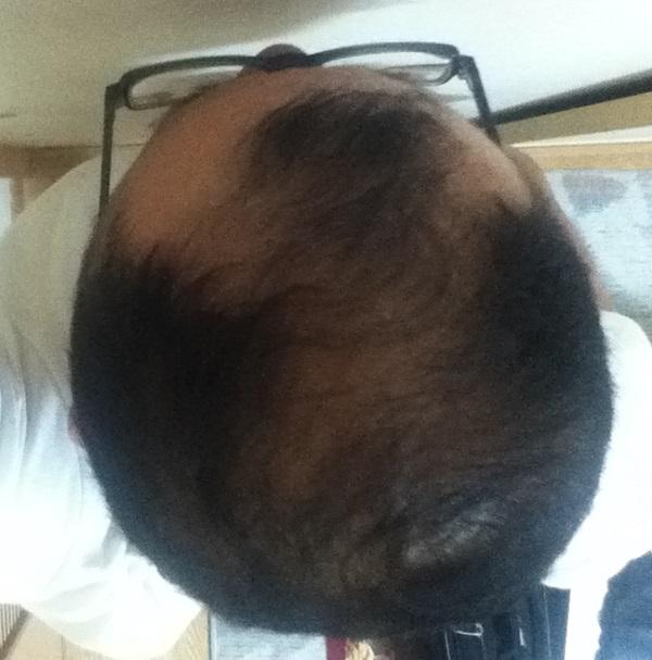 2016年6月13日(月)の頭頂部