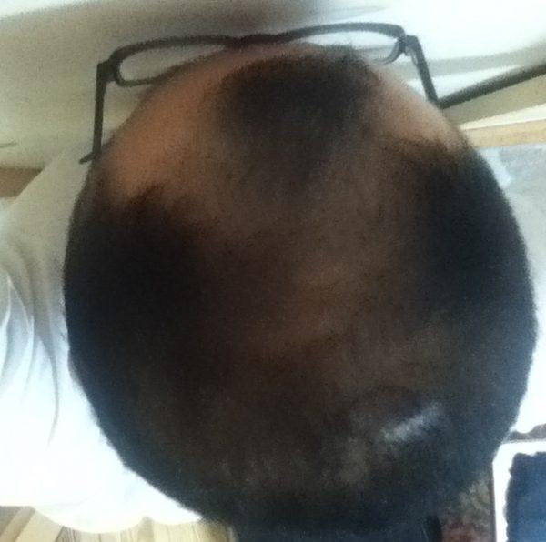 2016年6月16日の頭頂部
