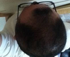 2016年6月24日の頭頂部