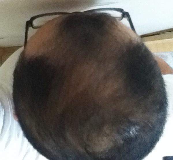 2016年6月29日の頭頂部アングル