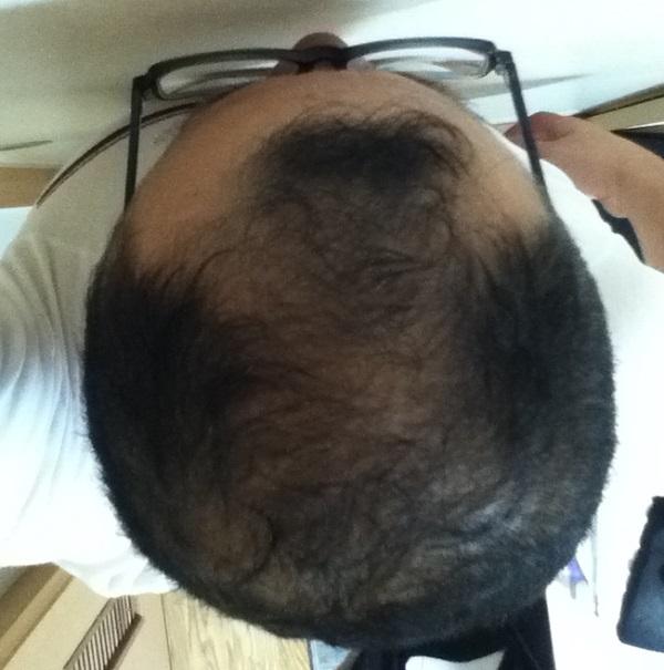 2016年7月11日の頭頂部