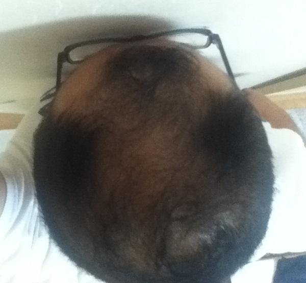 2016年7月14日の頭頂部効果