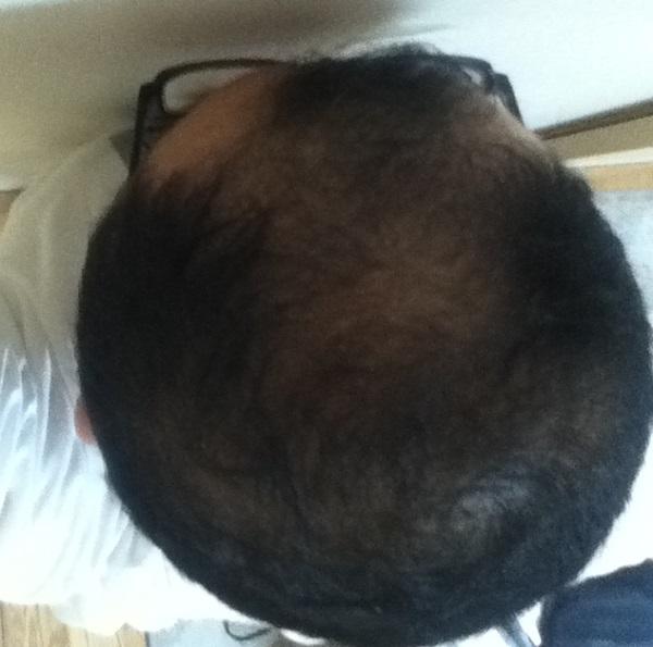 2016年7月29日の頭頂部