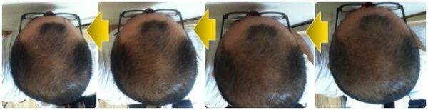 2016年8月6日~8月31までの流れ頭頂部変化