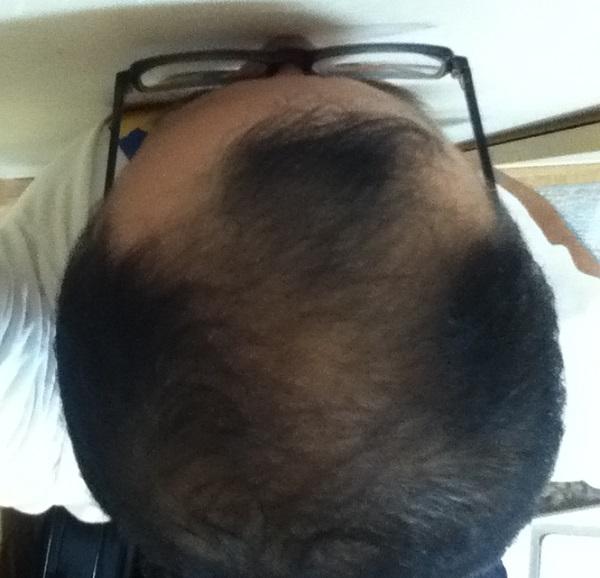 2016年8月3日の夜の頭頂部