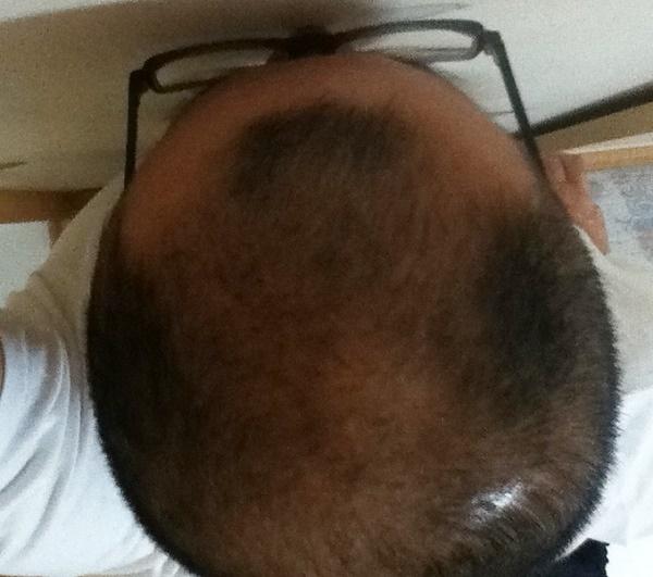 2016年8月9日の頭頂部