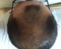 2016年8月25日の頭頂部