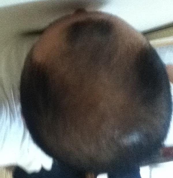 頭頂部は2016年8月27日の状態