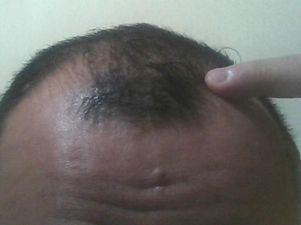 2016年9月20日の前髪
