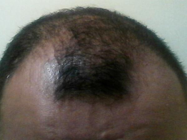 2016年9月22日結果の出てる前髪