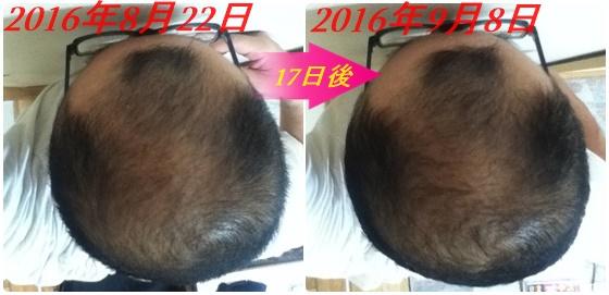 2016年8月22日と9月8日の頭頂部比較