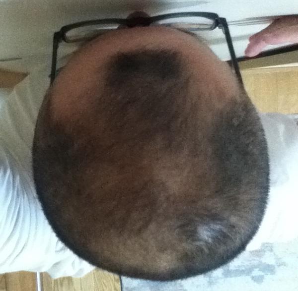 2016年9月11日の頭頂部