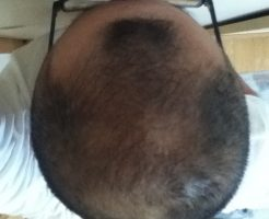 頭頂部2016年9月12日のもの