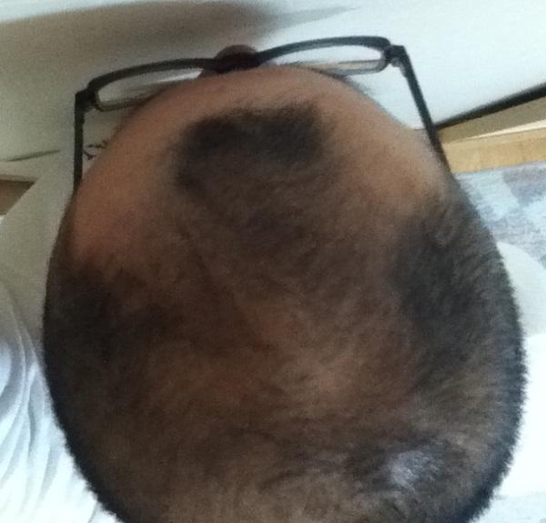 2016年9月17日の頭頂部