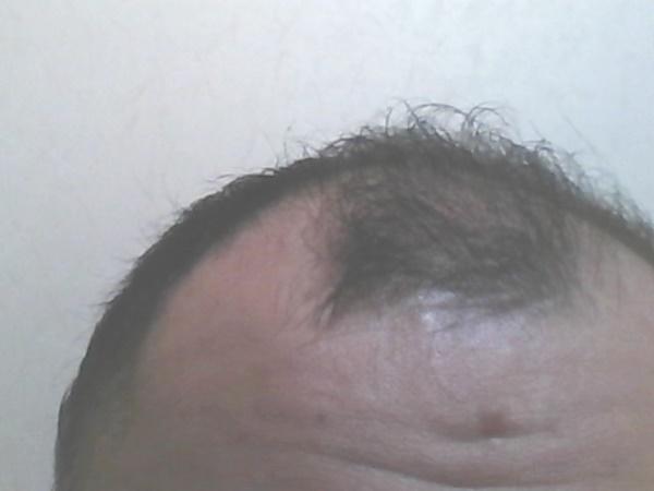 2016年10月15日の前髪