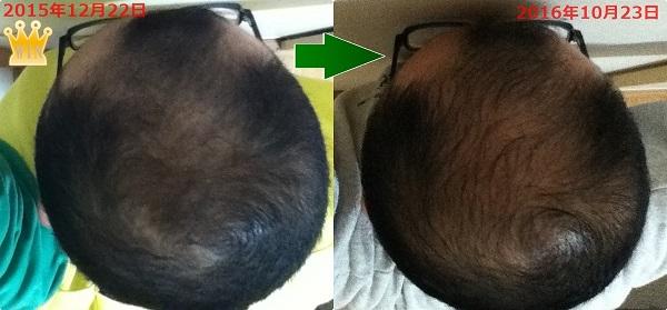 2015年12月22日と2016年10月23日の頭頂部比較