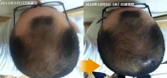 最新の頭頂部比較1か月後