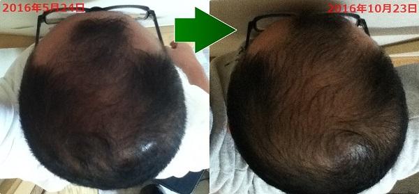 2016年5月24日と2016年10月23日の頭頂部比較