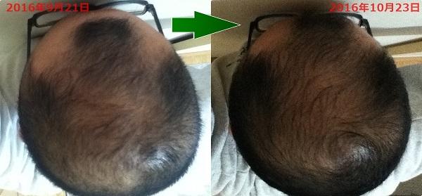 2016年9月21日と2016年10月23日の頭頂部比較