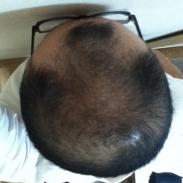 2016年10月10日の頭頂部