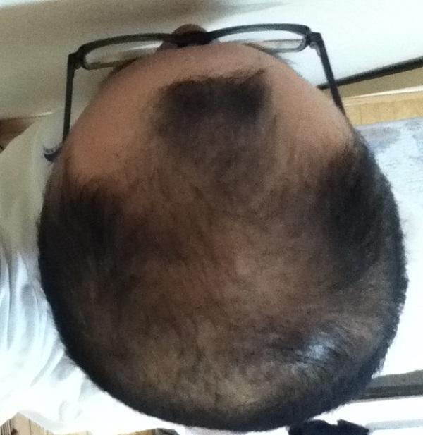 頭頂部画像2016年10月12日