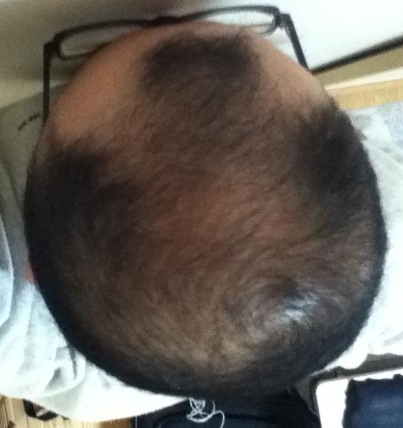 2016年10月19日の頭頂部