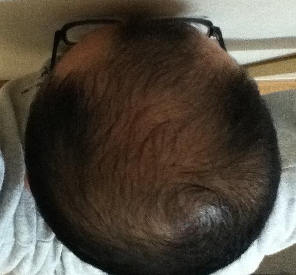 2016年10月23日の頭頂部