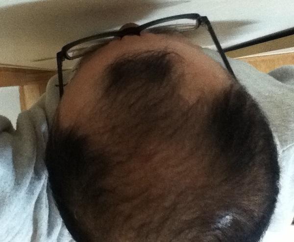 2016年10月24日の頭頂部