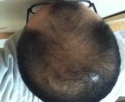 2016年10月27日の頭頂部