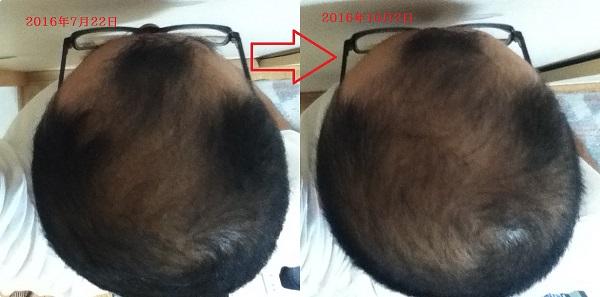 頭頂部比較2016年7月と10月