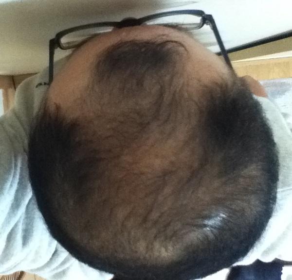 2016年11月1日の頭頂部
