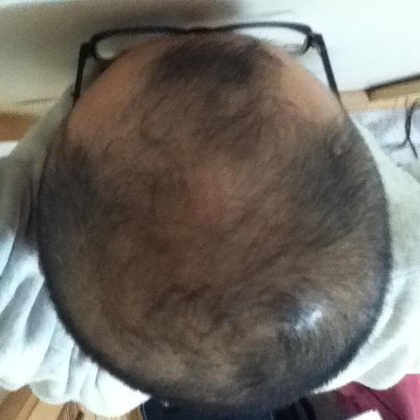 2016年11月8日の頭頂部