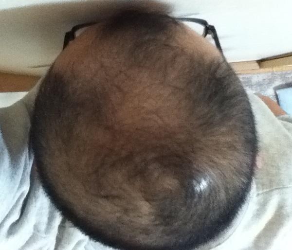 頭頂部は2016年11月13日の状態