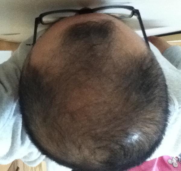2016年11月16日の頭頂部