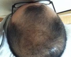 2016年11月19日の頭頂部画像