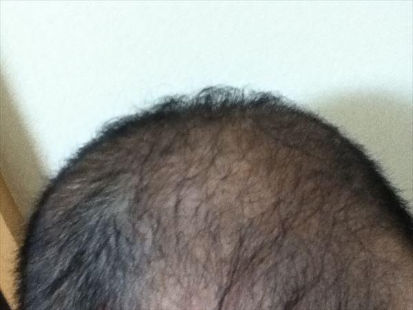 頭頂部後方部分は2016年11月19日