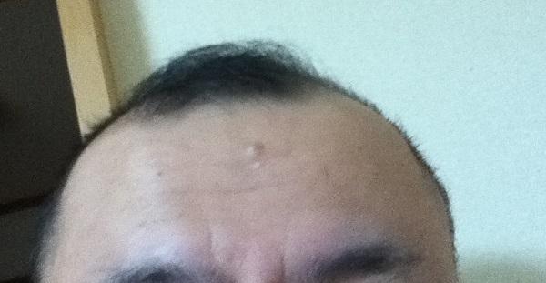 2016年11月19日の前髪中央部分